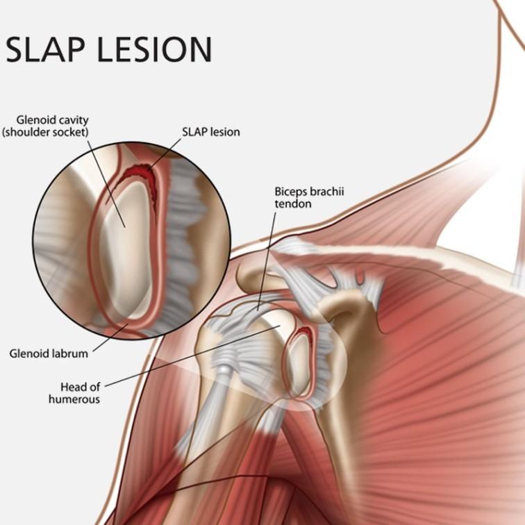 Slap Lesion